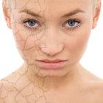сухой тип кожи лица